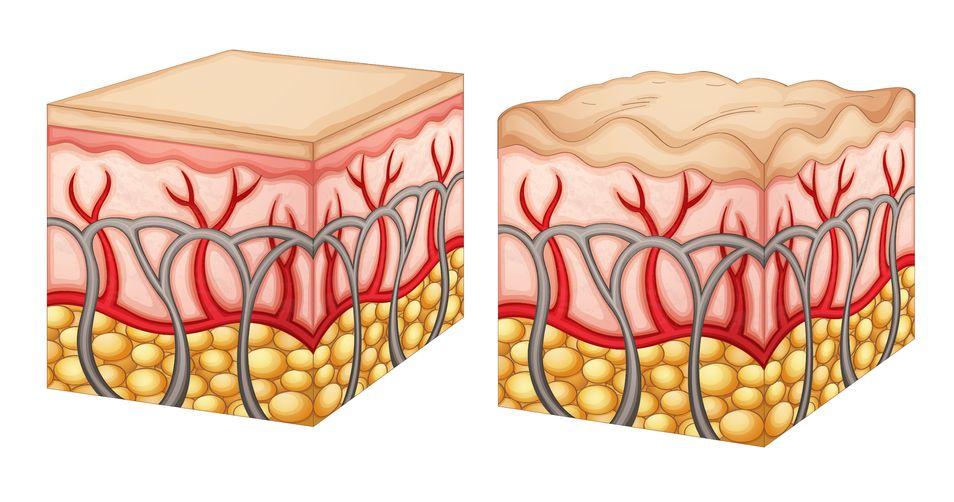 affetta da cellulite